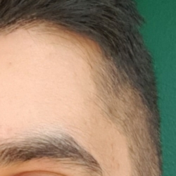 Asid (41)